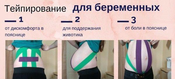 тейпирование для беременных
